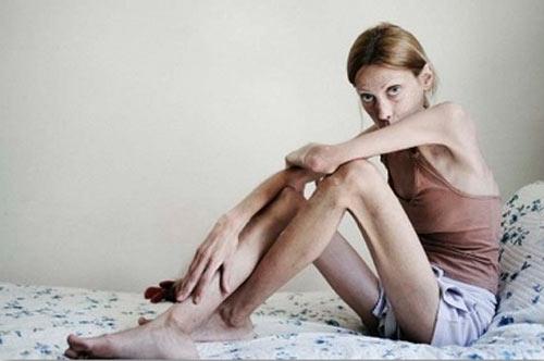 ragazza anoressica